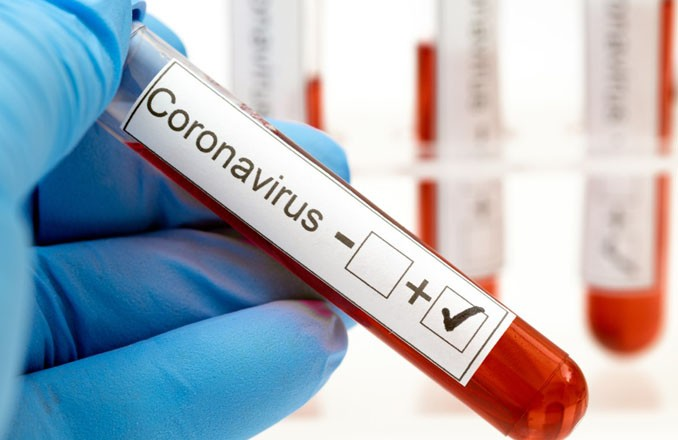 Sanidad explica que la reducción de la incidencia por coronavirus en Castilla-La Mancha en las últimas semanas no puede llevar a levantar medidas de forma indiscriminada